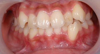 乱ぐい歯・八重歯