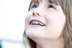 小児矯正治療と予防歯科