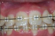 歯ぐきについて